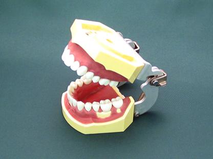 歯を抜かない矯正について。